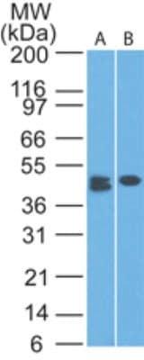 Western blot - Anti-CLEC9A antibody [IMG14N8D7] (ab172728)