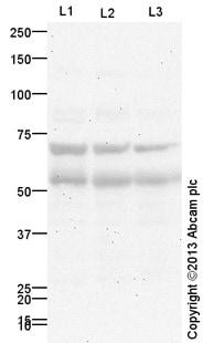 Western blot - Anti-Frizzled 4 antibody (ab172765)