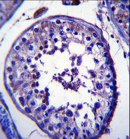 Immunohistochemistry (Formalin/PFA-fixed paraffin-embedded sections) - Anti-RNF23 antibody (ab172861)