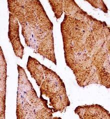 Immunohistochemistry (Formalin/PFA-fixed paraffin-embedded sections) - Anti-MLK2 antibody - N-terminal (ab172873)