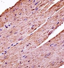 Immunohistochemistry (Formalin/PFA-fixed paraffin-embedded sections) - Anti-PDK3 antibody - C-terminal (ab172874)