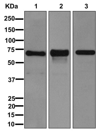 Western blot - Anti-Perilipin-1 antibody [EPR3753(2)] (ab172907)