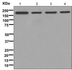 Western blot - Anti-Clathrin heavy chain antibody [EPR12235(B)] (ab172958)