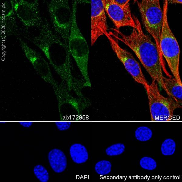 Immunocytochemistry/ Immunofluorescence - Anti-Clathrin heavy chain antibody [EPR12235(B)] (ab172958)
