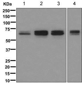 Western blot - Anti-PICALM antibody [EPR12177] (ab172962)