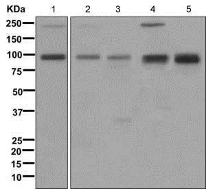 Western blot - Anti-IGF1 Receptor + Insulin Receptor antibody [EPR2334(2)] (ab172965)