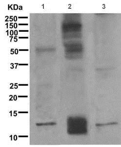 Western blot - Anti-Psoriasin antibody [EPR10433(2)] (ab172966)