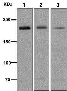 Western blot - Anti-MYH7B antibody [EPR12290] (ab172967)