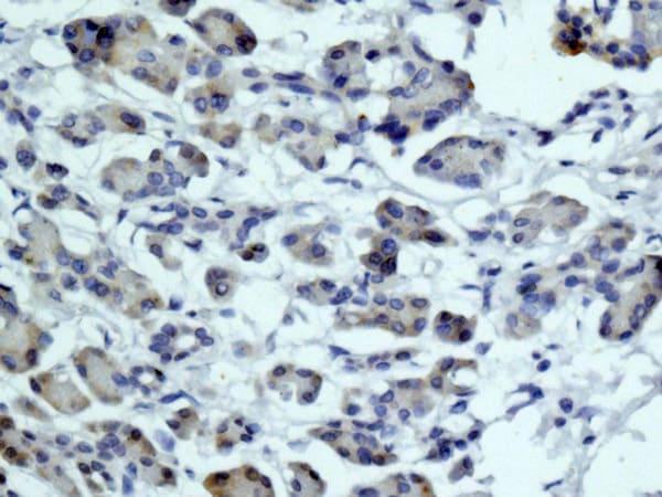 Immunohistochemistry (Formalin/PFA-fixed paraffin-embedded sections) - Anti-MYH7B antibody [EPR12290] (ab172967)