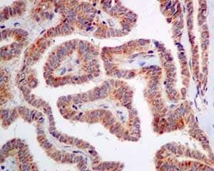 Immunohistochemistry (Formalin/PFA-fixed paraffin-embedded sections) - Anti-ME3 antibody [EPR10378] (ab172972)