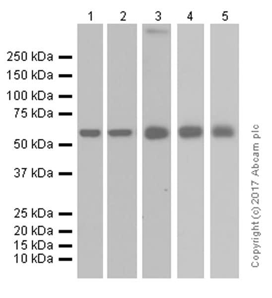 Western blot - Anti-ME3 antibody [EPR10378] (ab172972)