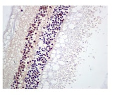 Immunohistochemistry (Formalin/PFA-fixed paraffin-embedded sections) - Anti-Rb (phospho S608) antibody [EPR10849] (ab172975)