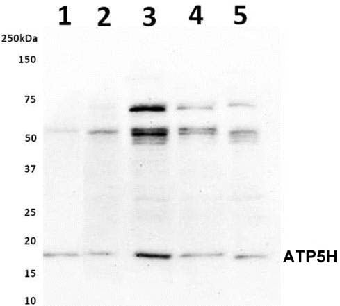 Western blot - Anti-ATP5H antibody [10G5AB9] (ab173006)