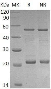 SDS-PAGE - Recombinant Human Bax protein (ab173026)