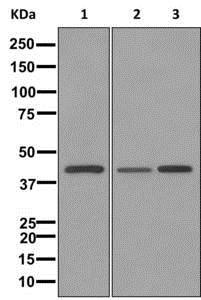 Western blot - Anti-Carboxypeptidase A antibody [EPR12086] (ab173283)
