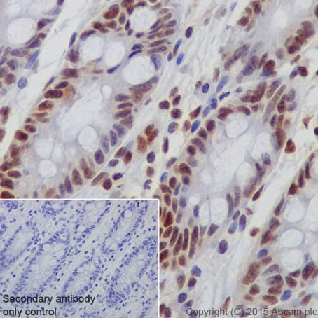 Immunohistochemistry (Formalin/PFA-fixed paraffin-embedded sections) - Anti-Rb (phospho S780) antibody [EPR182(N)] (ab173289)