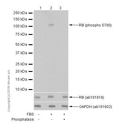 Western blot - Anti-Rb (phospho S780) antibody [EPR182(N)] (ab173289)