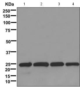 Western blot - Anti-LSM12 antibody [EPR12282-87] (ab173292)
