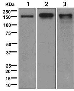Western blot - Anti-CACNA2D2 antibody [EPR12343] (ab173293)