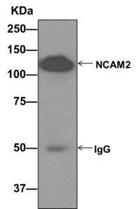 Immunoprecipitation - Anti-NCAM2 antibody [EPR12815(B)] (ab173297)