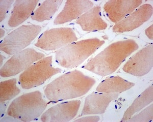 Immunohistochemistry (Formalin/PFA-fixed paraffin-embedded sections) - Anti-CSRP3 antibody [EPR12616(B)] (ab173301)