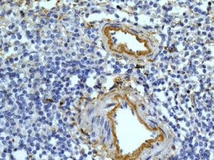 Immunohistochemistry (Formalin/PFA-fixed paraffin-embedded sections) - Anti-Complement C9 antibody [EPR11232-82] (ab173302)