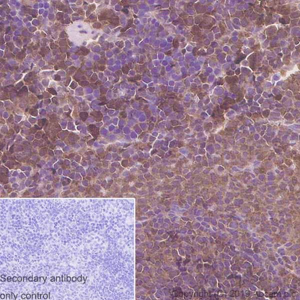 Immunohistochemistry (Formalin/PFA-fixed paraffin-embedded sections) - Anti-eIF4EBP1 antibody [Y329] - BSA and Azide free (ab173370)
