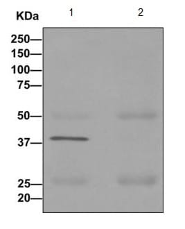 Immunoprecipitation - Anti-GNAI3 antibody [EPR11894] (ab173527)