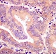 Immunohistochemistry (Formalin/PFA-fixed paraffin-embedded sections) - Anti-Raf1 (phospho S259) antibody [EPR3433(2)] (ab173539)
