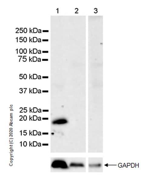 Western blot - Anti-Caveolin-3 antibody [EPR11082] (ab173575)