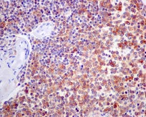Immunohistochemistry (Formalin/PFA-fixed paraffin-embedded sections) - Anti-CD1b antibody [EP7251] (ab173576)