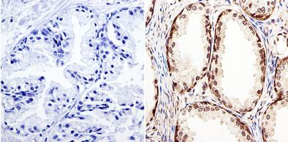 Immunohistochemistry (Formalin/PFA-fixed paraffin-embedded sections) - Anti-GATA2 antibody - N-terminal (ab173817)