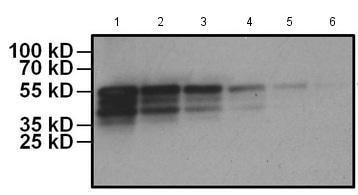 Western blot - HRP Anti-Myc tag antibody [Myc.A7] (ab173830)