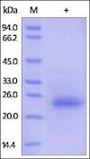 SDS-PAGE - Recombinant human CD160 protein (ab174001)