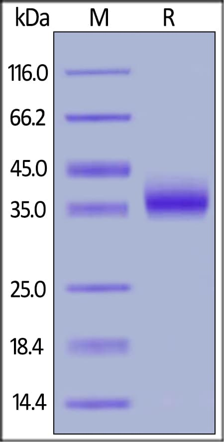 SDS-PAGE - Recombinant human IL2 Receptor beta/p75 protein (ab174003)