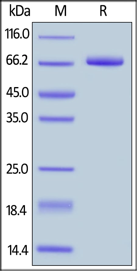 SDS-PAGE - Recombinant human CD19 protein (Fc Chimera Active) (ab174012)