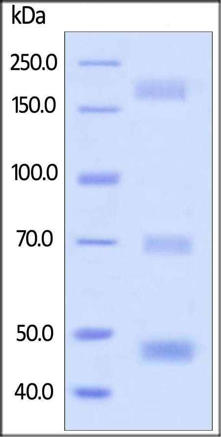 SDS-PAGE - Recombinant Human MS2 protein (BSA and azide free) (ab174041)
