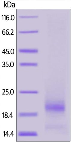 SDS-PAGE - Recombinant human RSPO3 protein (BSA and azide free) (ab174048)