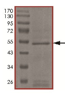 SDS-PAGE - Recombinant Human LOXL3 protein (Tagged) (ab174063)