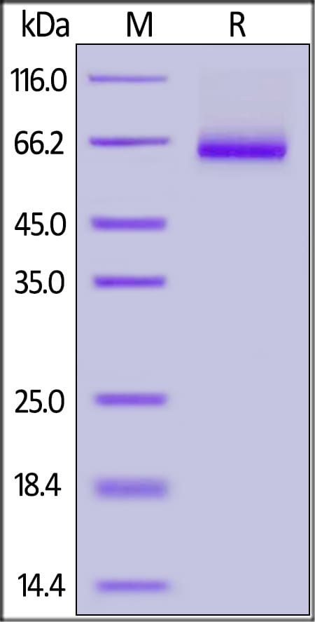 SDS-PAGE - Recombinant Human soluble IL2 Receptor beta protein (Fc Chimera) (ab174072)