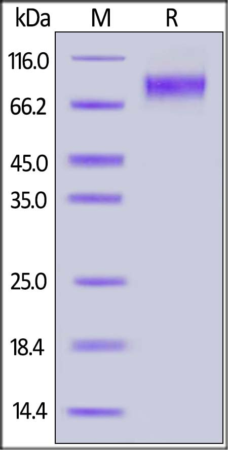SDS-PAGE - Recombinant Human soluble IL2 Receptor gamma protein (Fc Chimera) (ab174081)