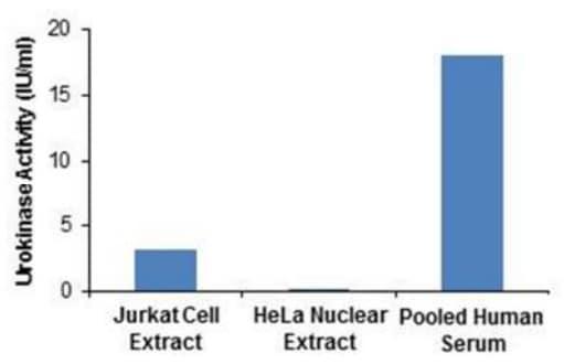 Urokinase activities in various samples