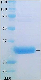 SDS-PAGE - Human PCNA full length protein (ab174188)