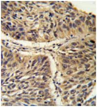 Immunohistochemistry (Formalin/PFA-fixed paraffin-embedded sections) - Anti-CCT3 antibody - C-terminal (ab174255)