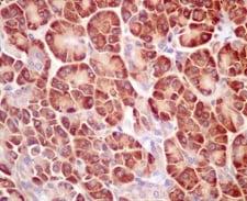 Immunohistochemistry (Formalin/PFA-fixed paraffin-embedded sections) - Anti-RPL4 antibody [EPR12304] (ab174269)