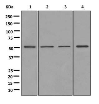 Western blot - Anti-MEIS2 antibody [EPR12100] (ab174270)