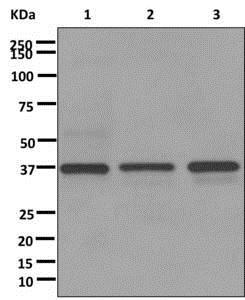 Western blot - Anti-C3orf38 antibody [EPR12512-110] (ab174274)