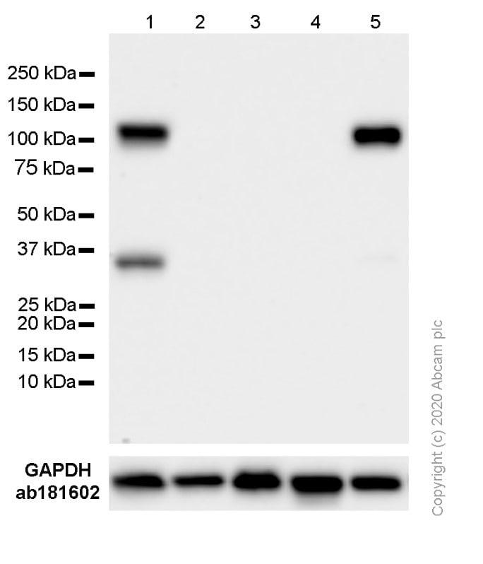 Western blot - Anti-VCAM1 antibody [EPR5038(2)] (ab174279)