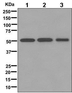 Western blot - Anti-NPP-7 antibody [EPR12329] (ab174281)
