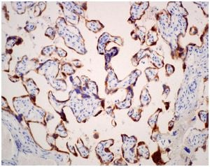 Immunohistochemistry (Formalin/PFA-fixed paraffin-embedded sections) - Anti-CSHL1 [EPR12580] antibody (ab174295)